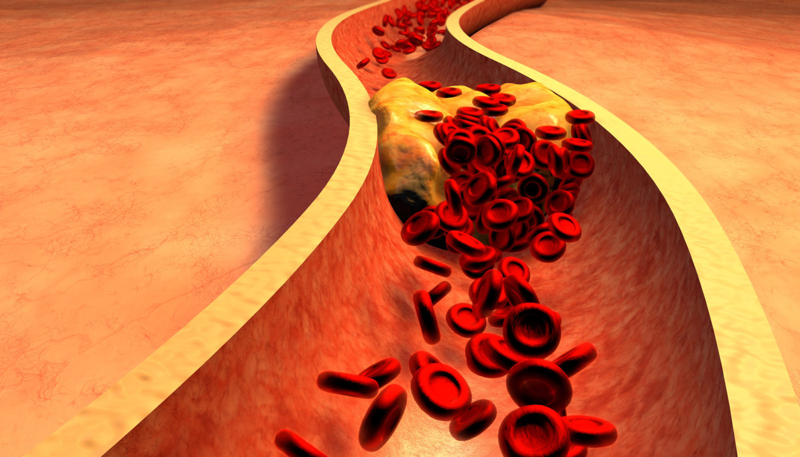 , Atherosclerosis – What is it?